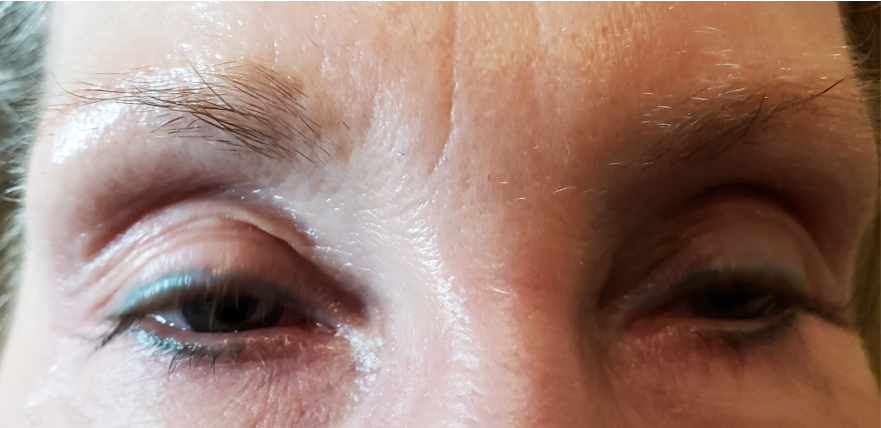 microblading before & after pics 00146